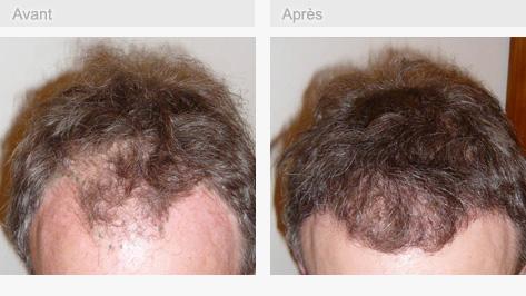 Greffe de cheveux avant après 02